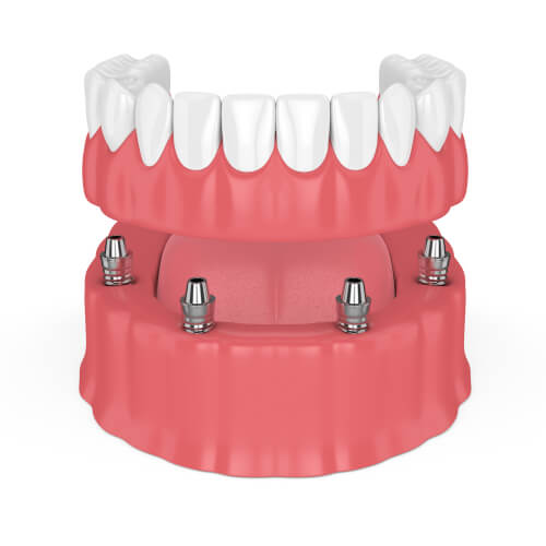 Removable full implant denture