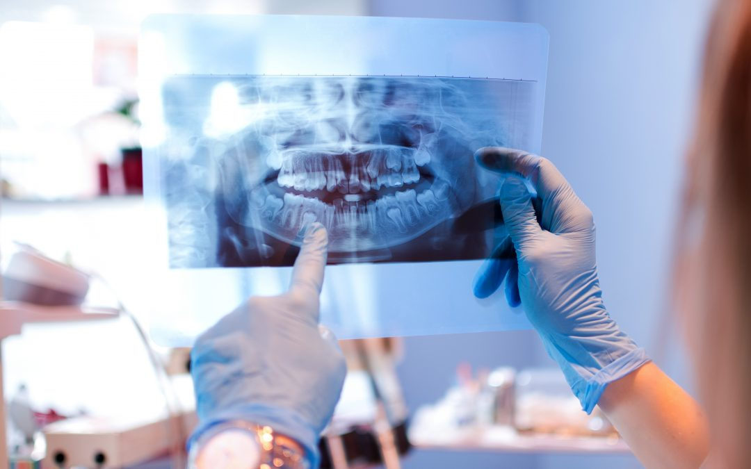 Considering Jaw Surgery? Here's What You Need to Know